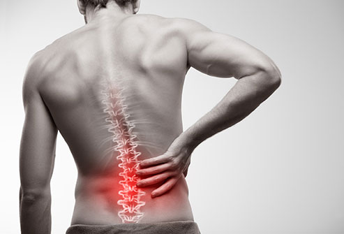 6 Low Back Pain Symptoms, Locations, Treatments & Causes